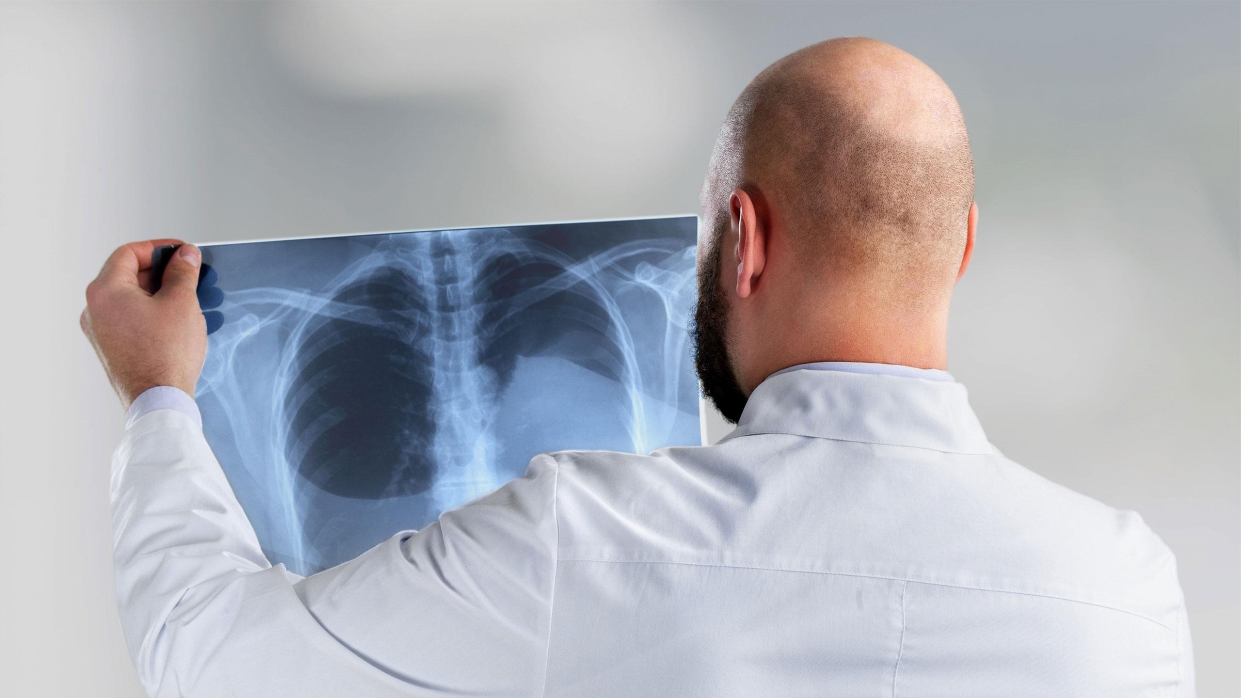 Radiology X-Ray